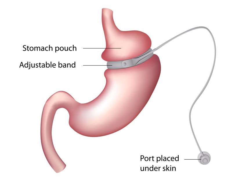 Gastric bypass numbness